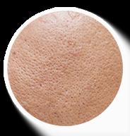 da đổ dầu lỗ chân lông to