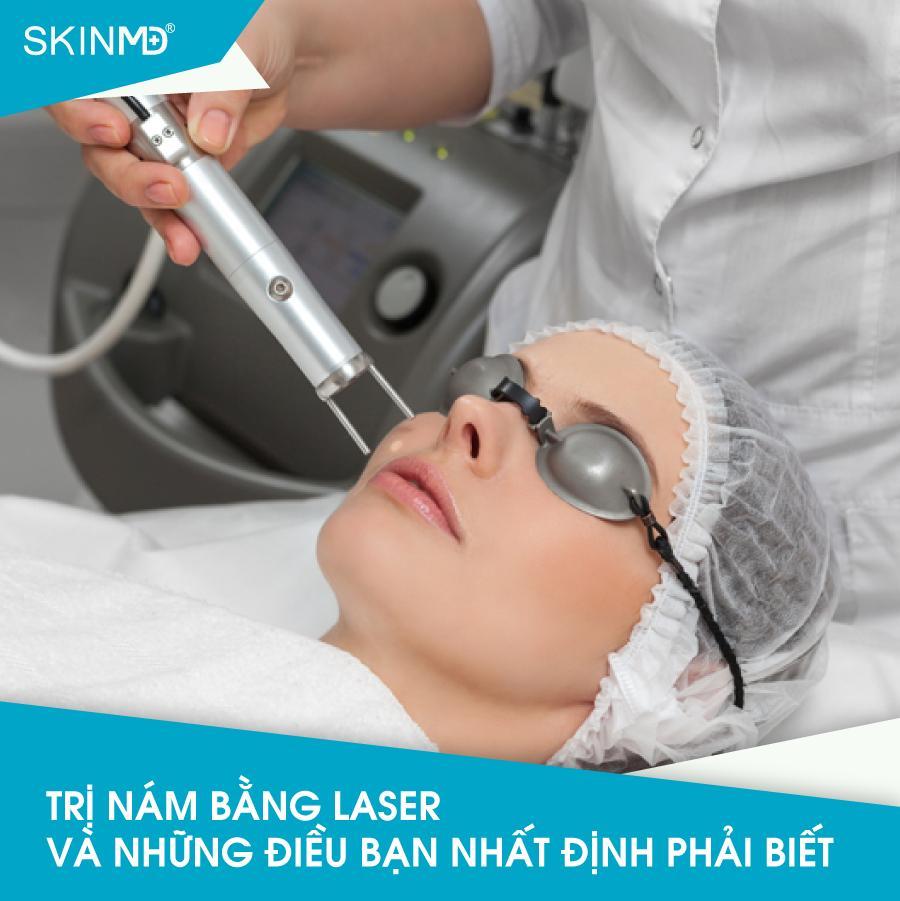 tri-nam-bang-laser-va-nhung-dieu-ban-nhat-dinh-phai-biet