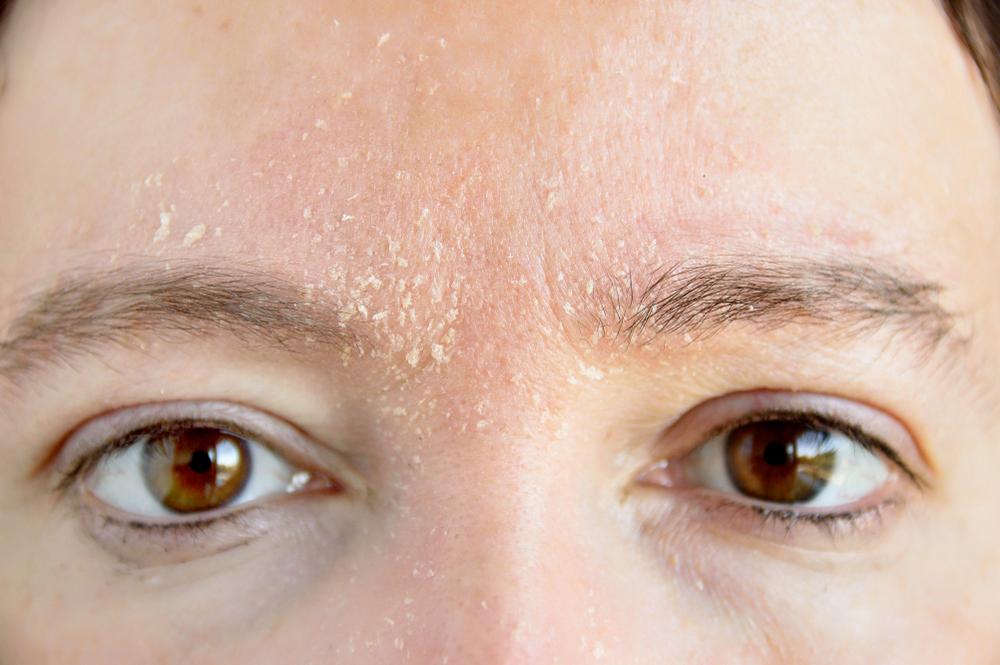 Da mất nước là vấn đề da có thể gặp ở bất kì loại da nào, cả da khô và da dầu