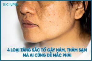 4-loai-tang-sac-to-gay-nam-tham-sam-ai-cung-de-mac-phai