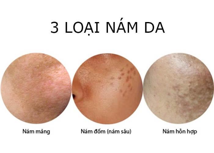Những loại nám da phổ biến