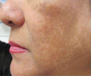Nguyên nhân gây nám da ở phụ nữ