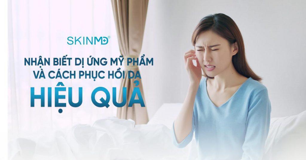 di-ung-my-pham-va-cach-phuc-hoi-da-hieu-qua