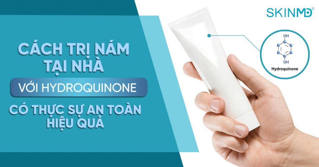 tri-nam-tai-nha-bang-hydroquinone