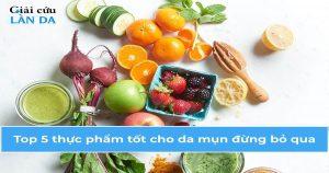 Top 5 thực phẩm cho da mụn cực tốt cho mọi người không nên bỏ qua
