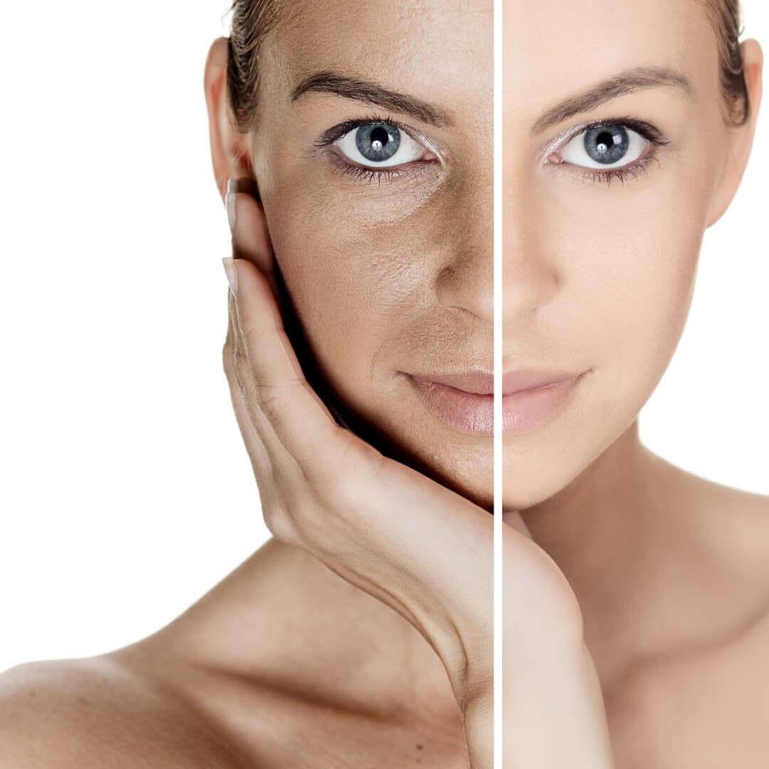 Áp dụng cách trị vết thâm sau khi bắn laser để có làn da đẹp hơn