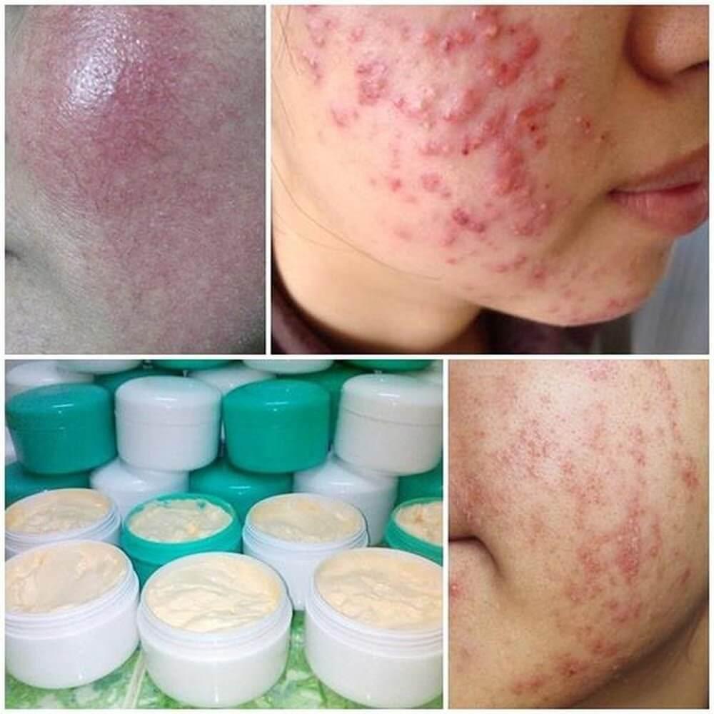 Các loại kem trộn gây ảnh hưởng cho da như thế nào