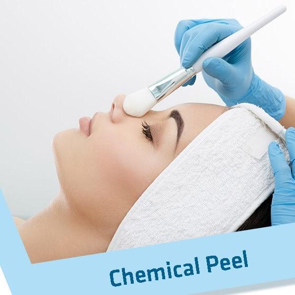 Chemical Peel là một trong các phương pháp trị mụn hiệu quả
