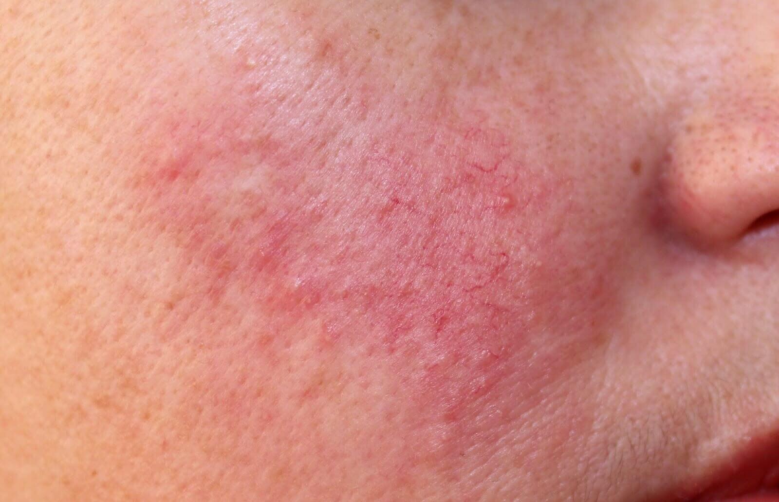 Điều trị thâm sau bắn laser để lại nhiều tác dụng phụ