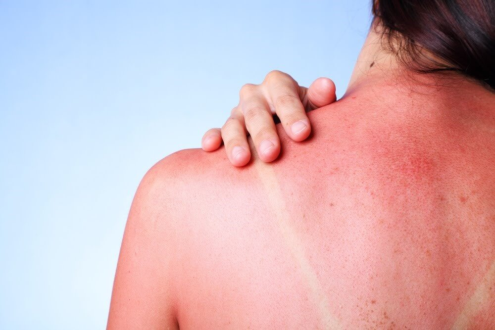 Nắng là một trong những nguyên nhân gây hại cho da