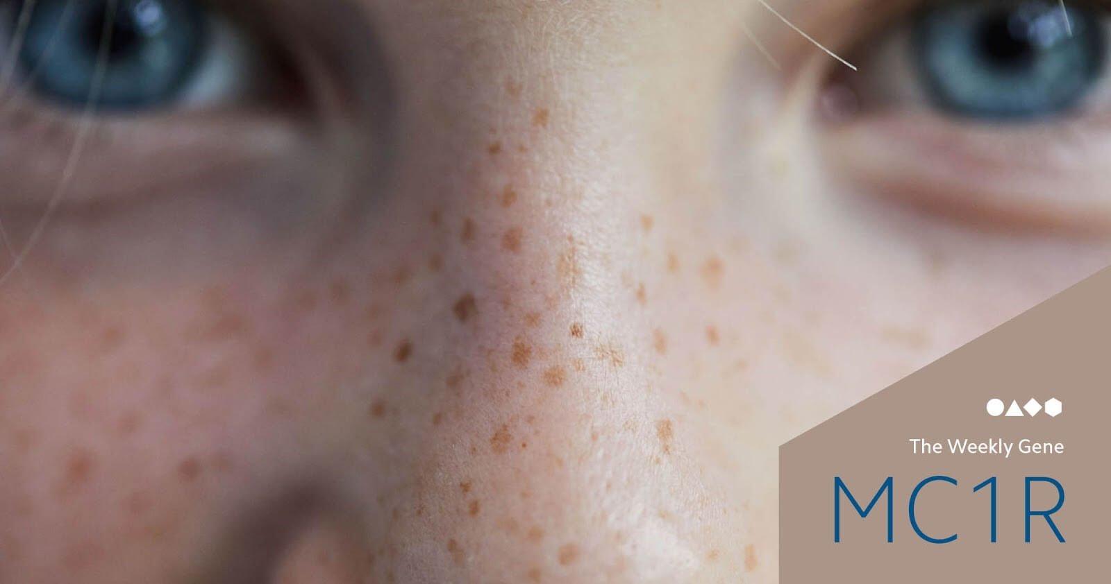 Nguyên nhân gây tàn nhang là tia UV