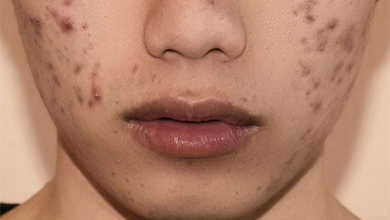 Nguyên nhân xuất hiện vết thâm trên mặt