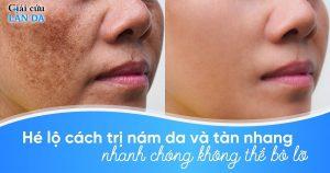 Cách trị nám da và tàn nhang