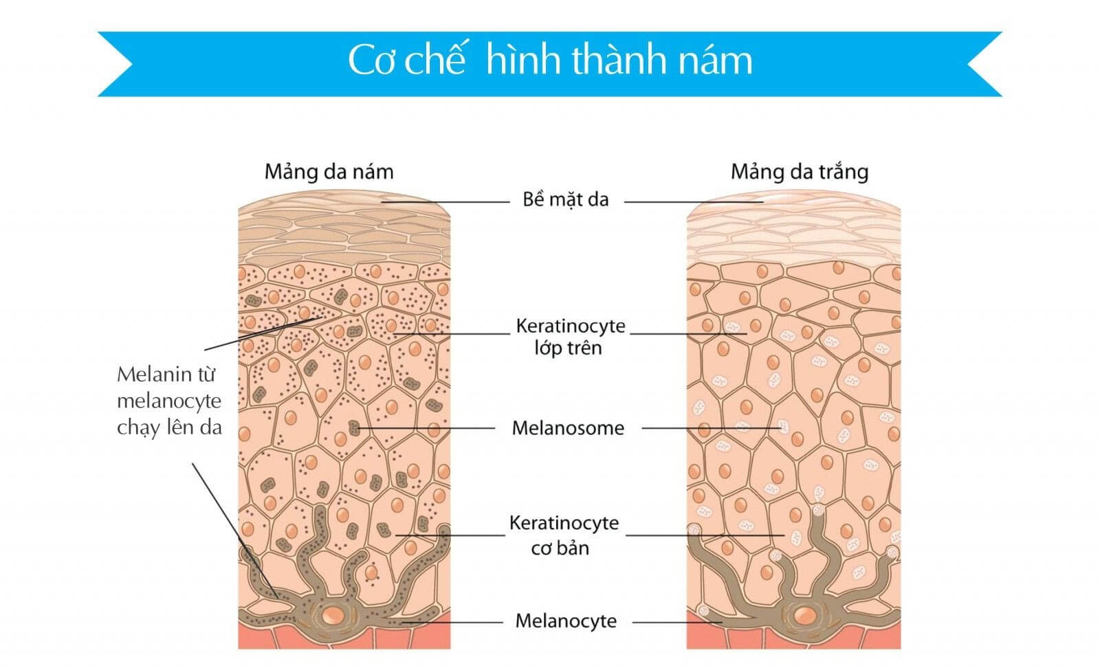 Nguyên nhân gây nám da và cơ chế hình thành