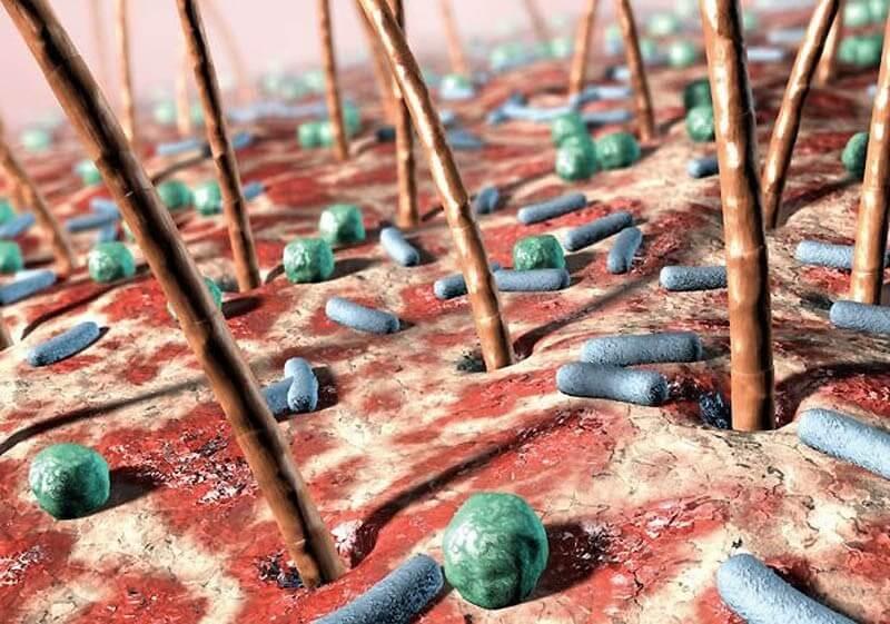 Vi khuẩn vi trùng gây hại cho làn da