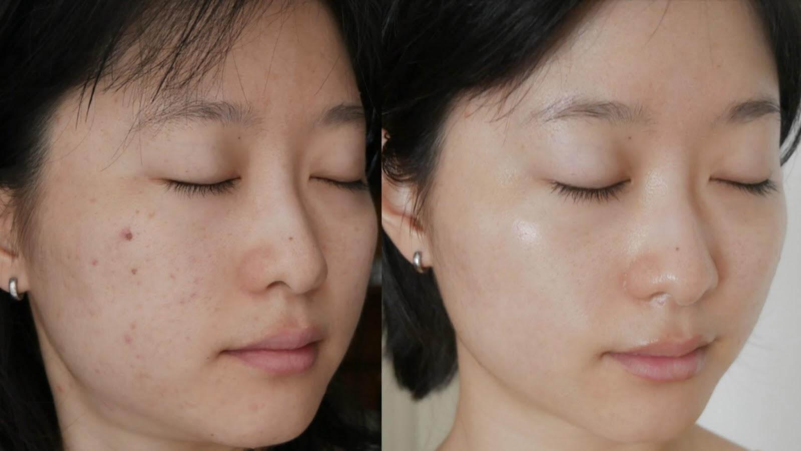 Da mặt trước và sau khi sử dụng ketoskin
