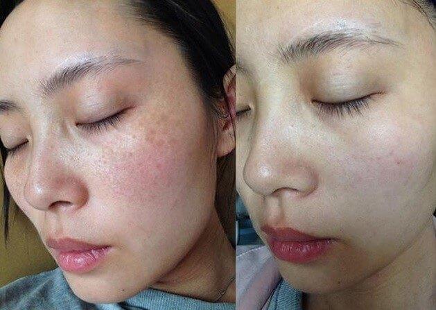 Làn da thay đổi sau khi sử dụng Ketoskin