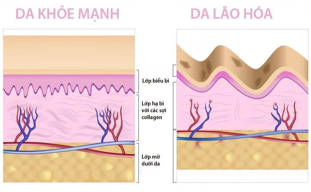 Sự khác biệt giữa da khỏe mạnh và da lão hóa