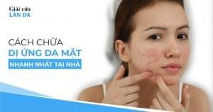Cách chữa dị ứng da mặt nhanh nhất tại nhà