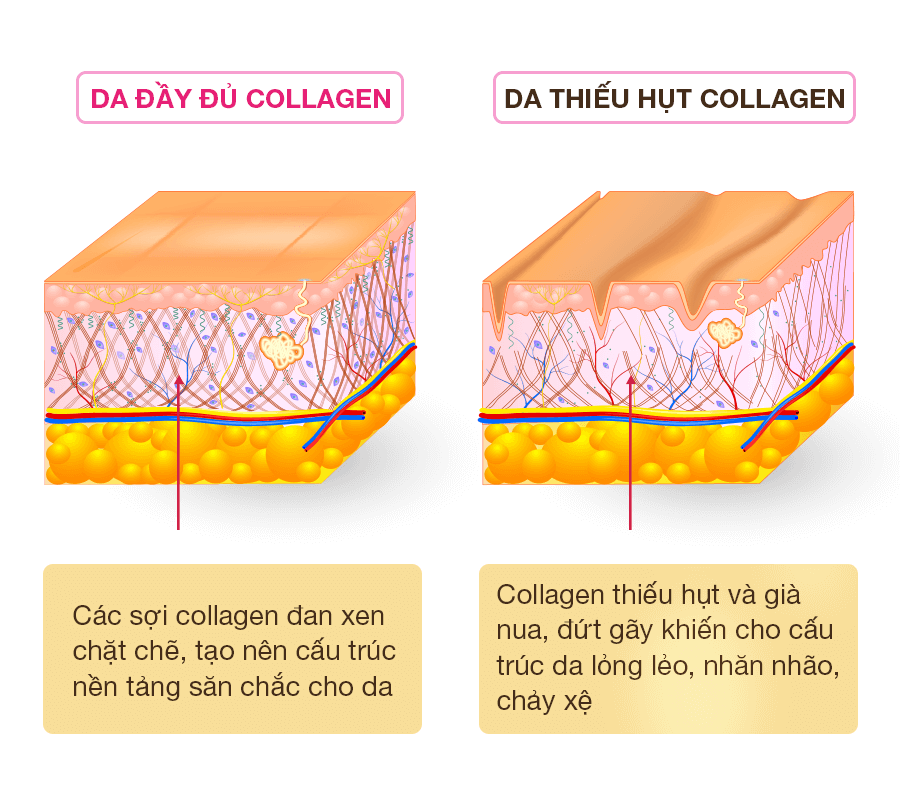 Tình trang collagen trên da