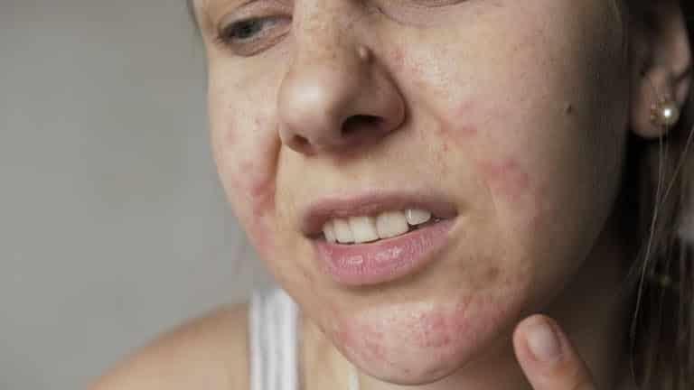 Tình trạng dị ứng da là gì