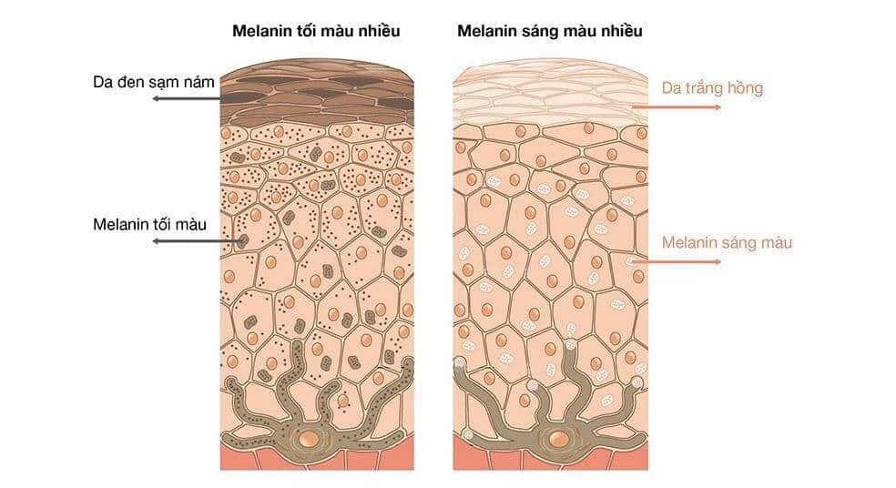 Tình trạng melanin của làn da