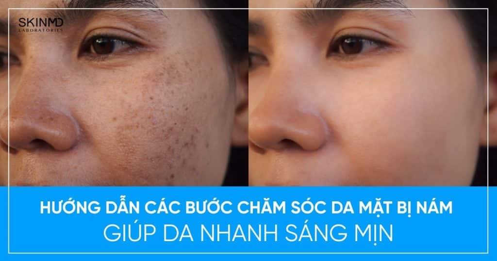 Các bước chăm sóc da mặt bị nám