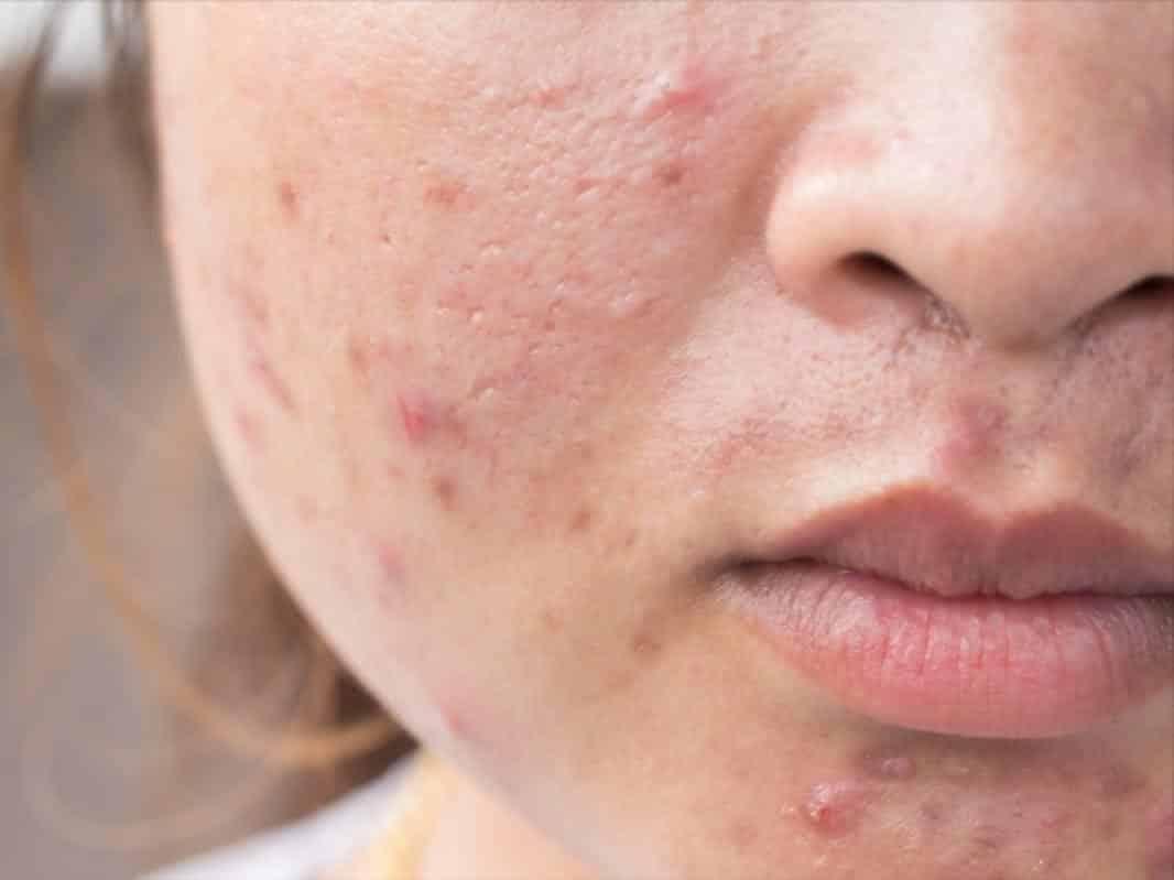 Làn da xuất hiện nhiều mụn