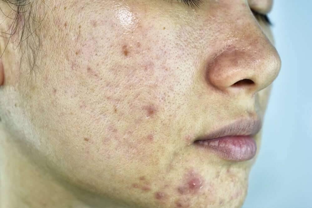 Làn da khô sần sùi do không được chăm sóc