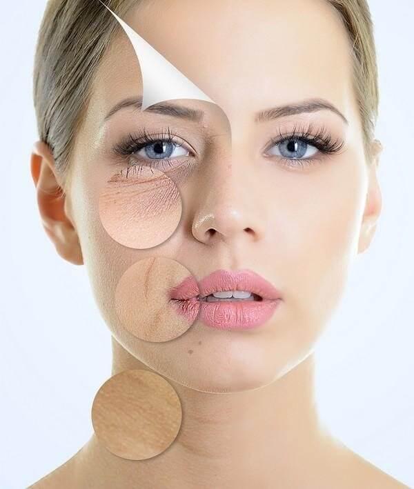 Tình trạng lão hóa của làn da